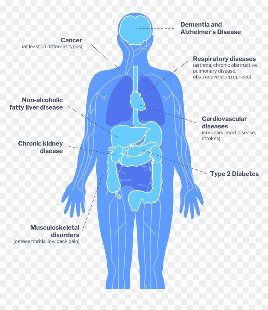 Obesity Impacts Hd Png Download Vhv